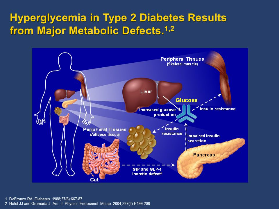Hyperglycemia in Type 2 Diabetes Results from Major Metabolic Defects. 1,2 1. DeFronzo RA. Diabetes. 1988;37(6):667-87 2. Holst JJ and Gromada J. Am.