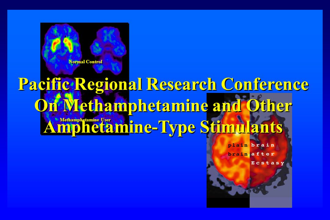 Normal Control Methamphetamine User Pacific Regional Research Conference On Methamphetamine and Other Amphetamine-Type Stimulants Pacific Regional Research Conference On Methamphetamine and Other Amphetamine-Type Stimulants