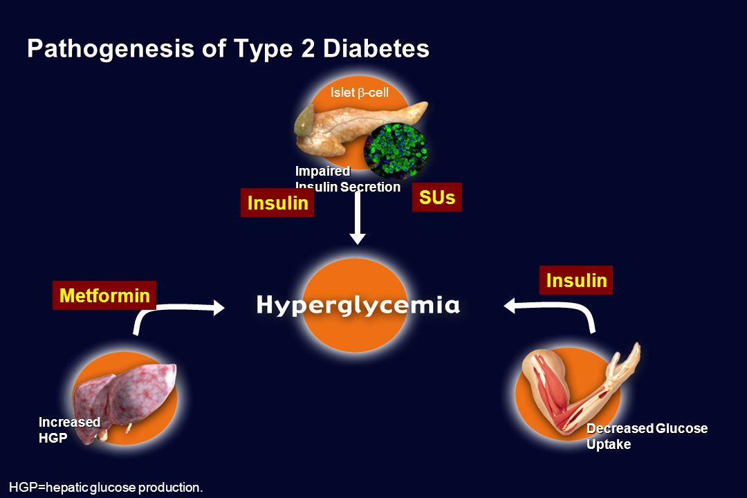 Pathogenesis of Type 2 Diabetes HGP=hepatic glucose production.