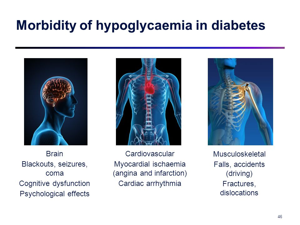 Morbidity of hypoglycaemia in diabetes Musculoskeletal Falls, accidents (driving) Fractures, dislocations Brain Blackouts, seizures, coma Cognitive dy