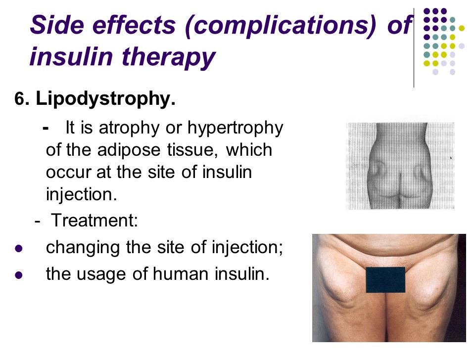 Side effects (complications) of insulin therapy 6. Lipodystrophy. - It is atrophy or hypertrophy of the adipose tissue, which occur at the site of ins
