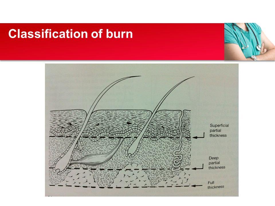 Classification of burn
