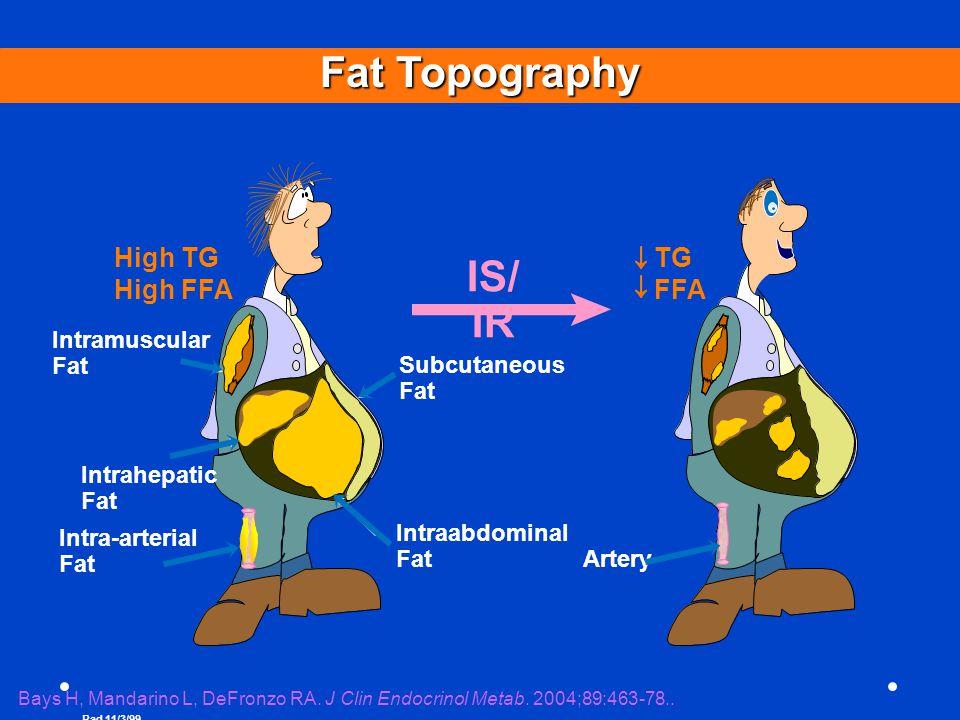 Rad 11/3/99 Intramuscular Fat Intrahepatic Fat Intraabdominal Fat Subcutaneous Fat Fat Topography High TG High FFA TG FFA IS/ IR Bays H, Mandarino L,