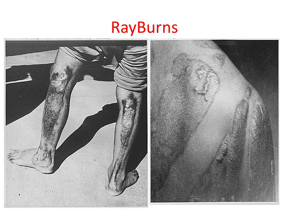 RayBurns