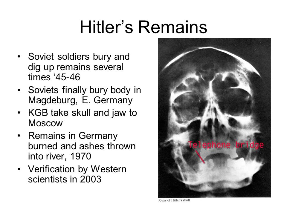 Hitler's Remains Soviet soldiers bury and dig up remains several times '45-46 Soviets finally bury body in Magdeburg, E.