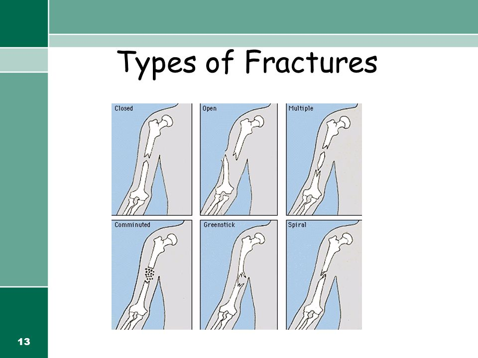 13 Types of Fractures