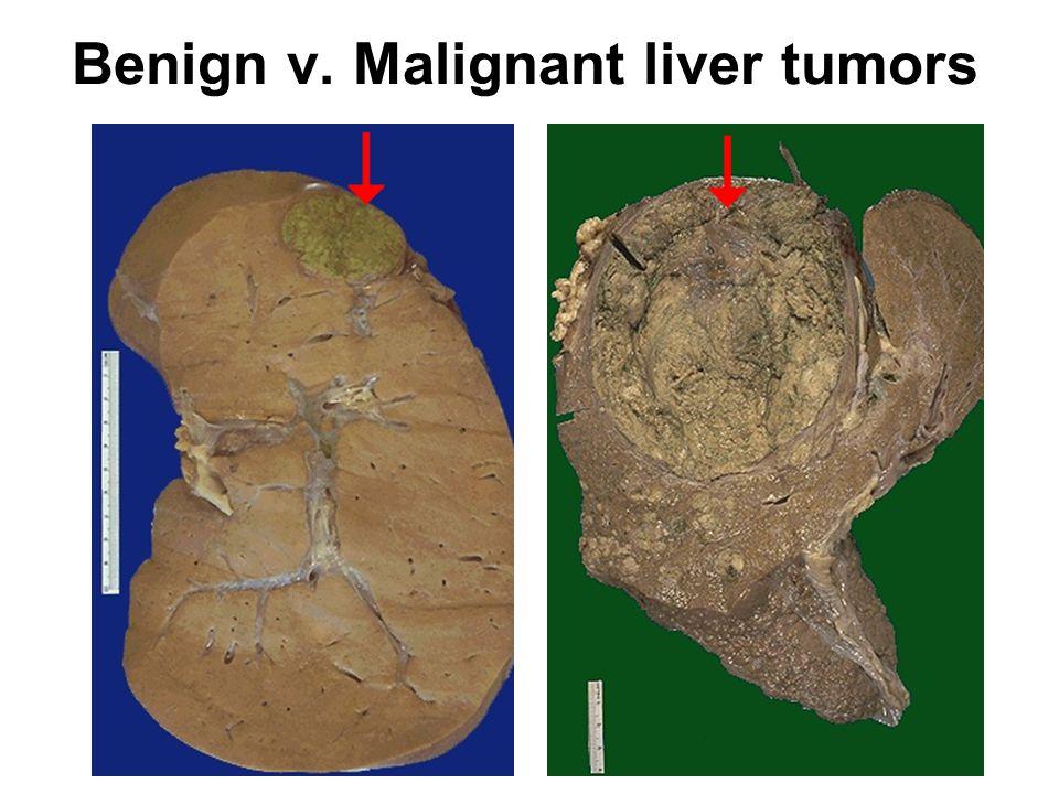 Benign v. Malignant liver tumors