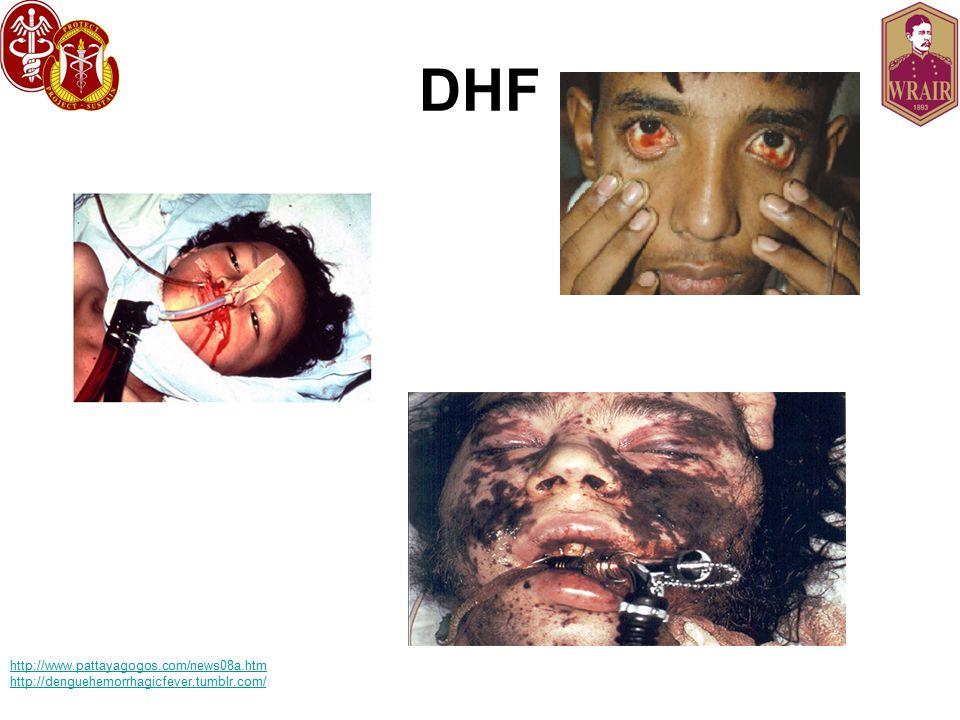 DHF http://www.pattayagogos.com/news08a.htm http://denguehemorrhagicfever.tumblr.com/