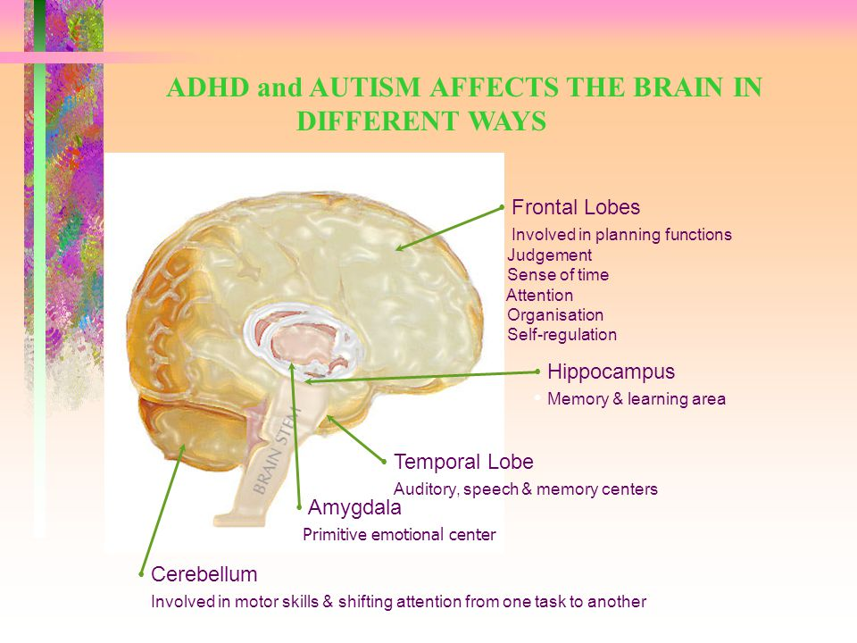 DEFINITIONS ADHD: Developmental impairment of the executive functions of the brain.