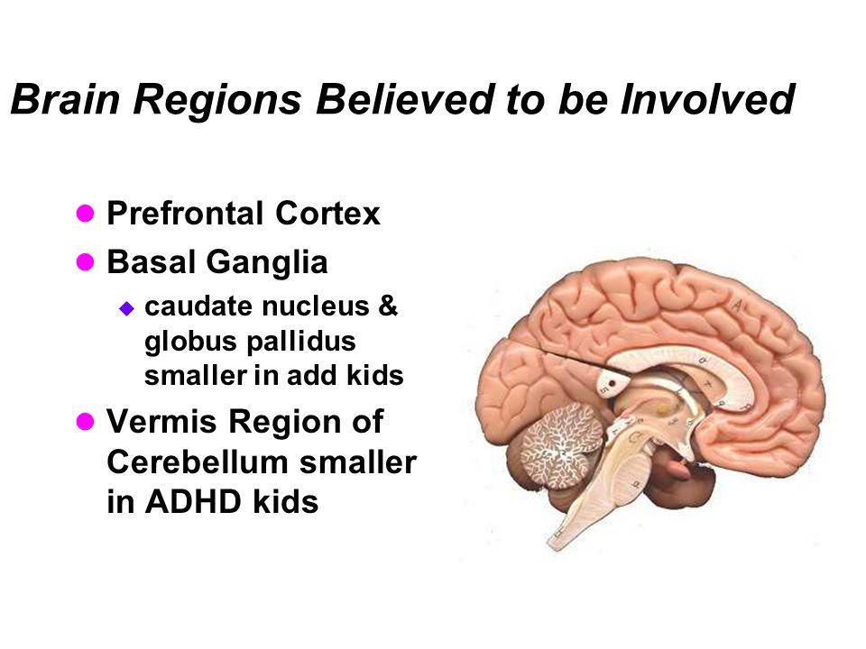 Brain Regions Believed to be Involved Prefrontal Cortex Basal Ganglia  caudate nucleus & globus pallidus smaller in add kids Vermis Region of Cerebel