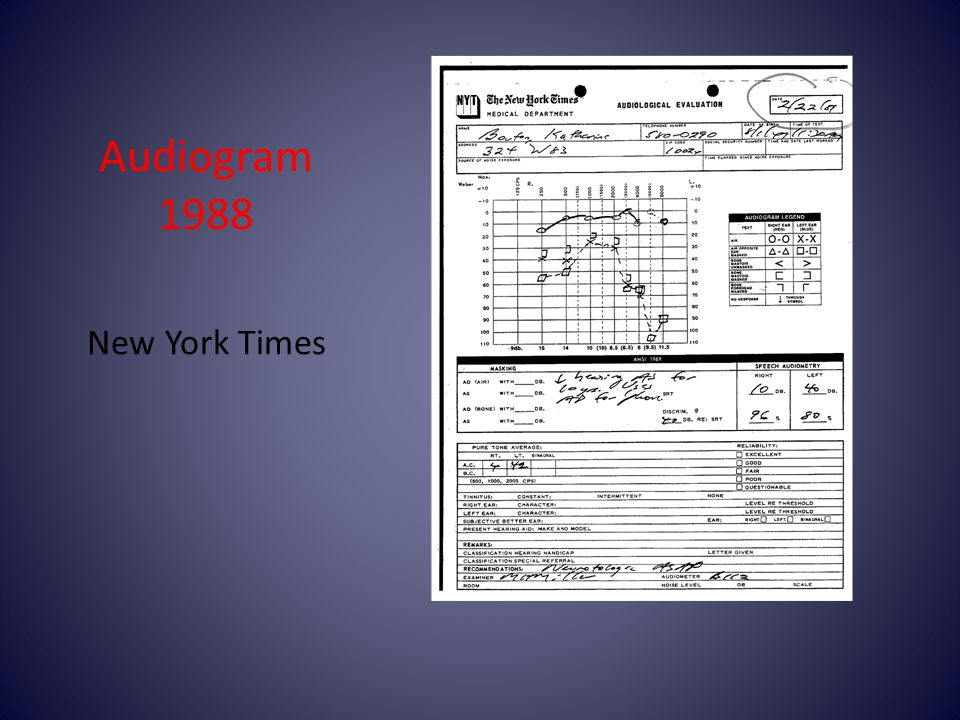 Audiogram 1988 New York Times