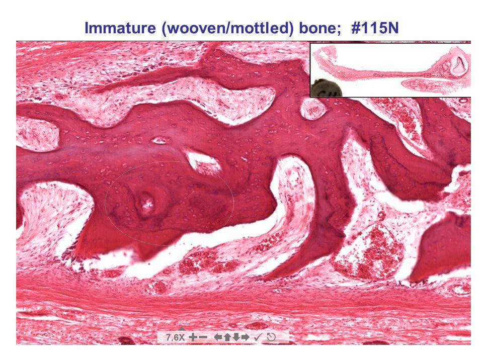 Immature (wooven/mottled) bone; #115N