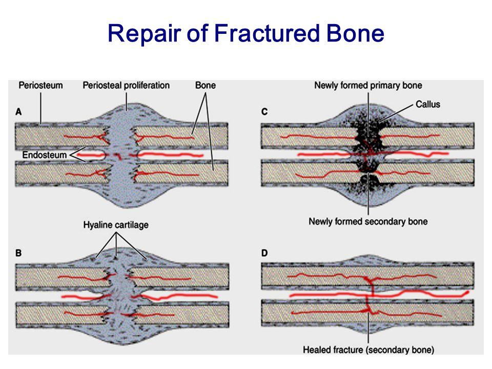 Repair of Fractured Bone