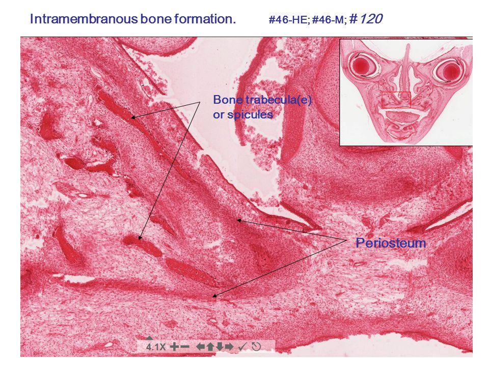 Bone Remodeling Erosion (resorption) Tunnel