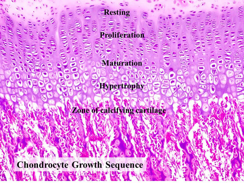 Chondrocyte Growth Sequence Resting Proliferation Hypertrophy Maturation Zone of calcifying cartilage