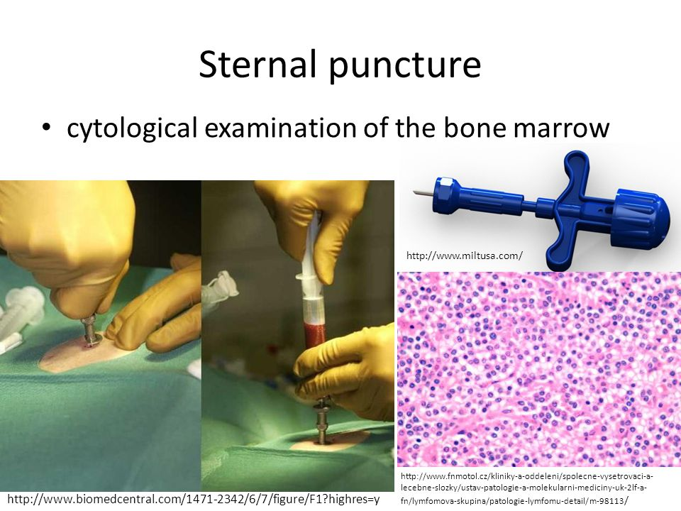 Sternal puncture cytological examination of the bone marrow http://www.biomedcentral.com/1471-2342/6/7/figure/F1?highres=y http://www.fnmotol.cz/klini