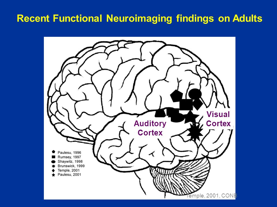 Temple, 2001, CONB Visual Cortex Auditory Cortex Recent Functional Neuroimaging findings on Adults