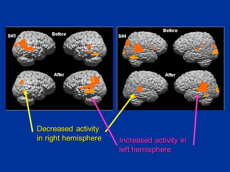 Decreased activity in right hemisphere Increased activity in left hemisphere