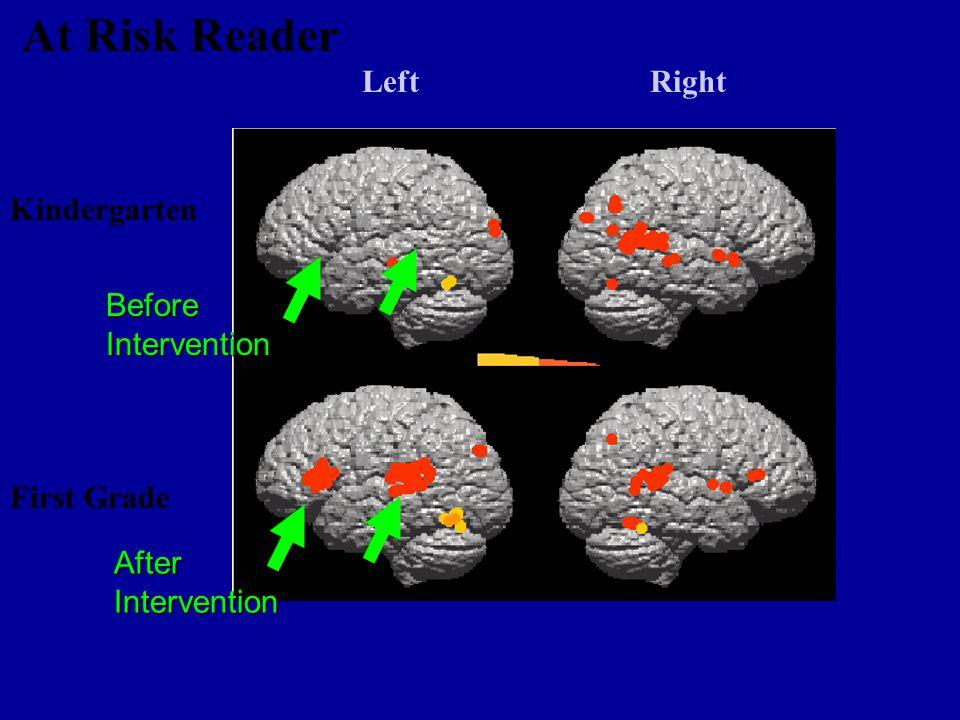 Kindergarten First Grade LeftRight At Risk Reader Before Intervention After Intervention