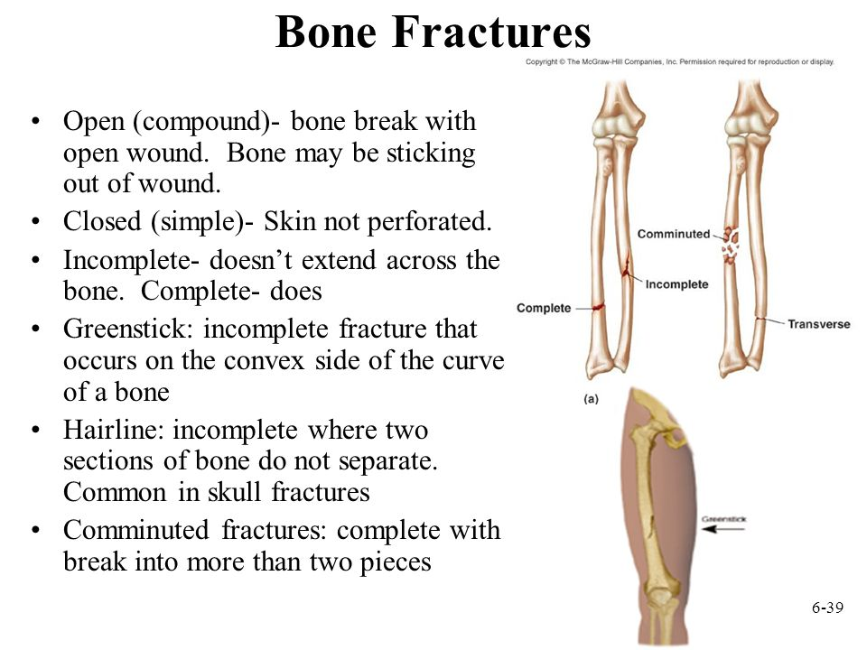 6-39 Bone Fractures Open (compound)- bone break with open wound.