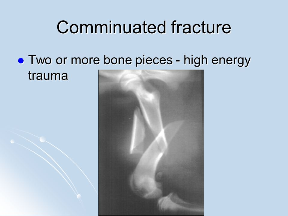 Comminuated fractures can require serious hardware to repair.