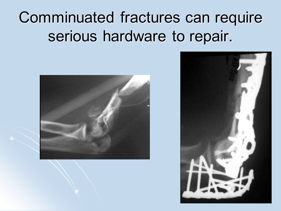 Stress fracture Abnormal stress on normal bone (fatigue fracture) or normal stress on abnormal bone (insufficiency fracture).
