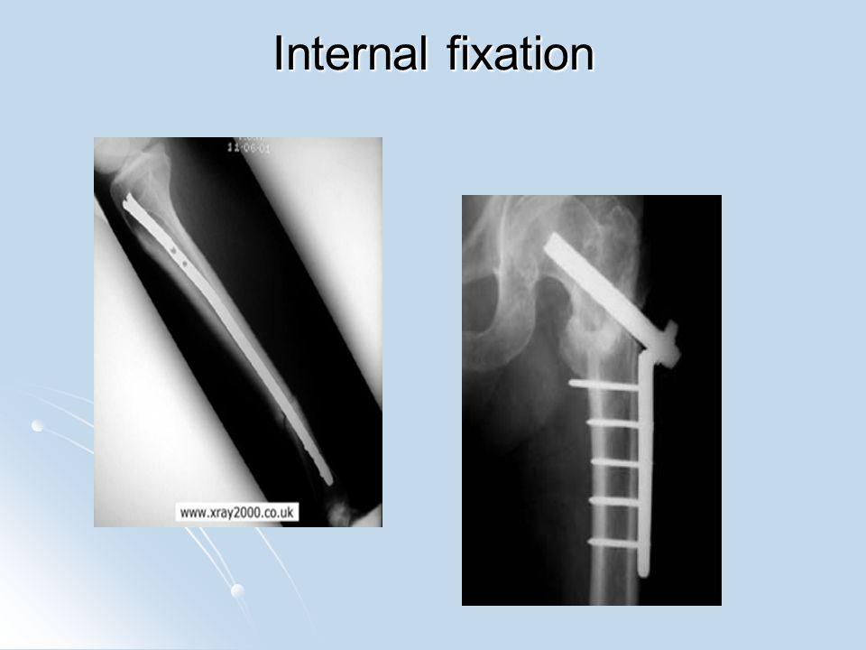 Bone Healing 1.Fracture hematoma – blood from broken vessels forms a clot.