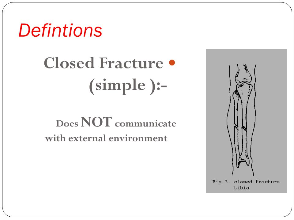 Defintions Closed Fracture (simple ):- Does NOT communicate with external environment
