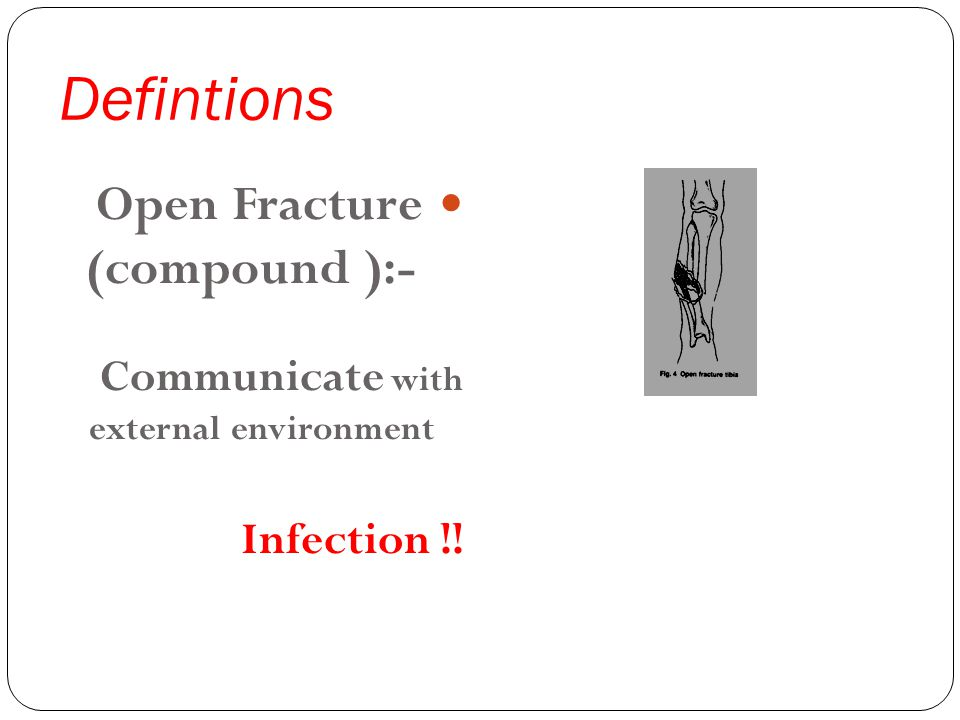 Defintions Open Fracture (compound ):- Communicate with external environment Infection !!