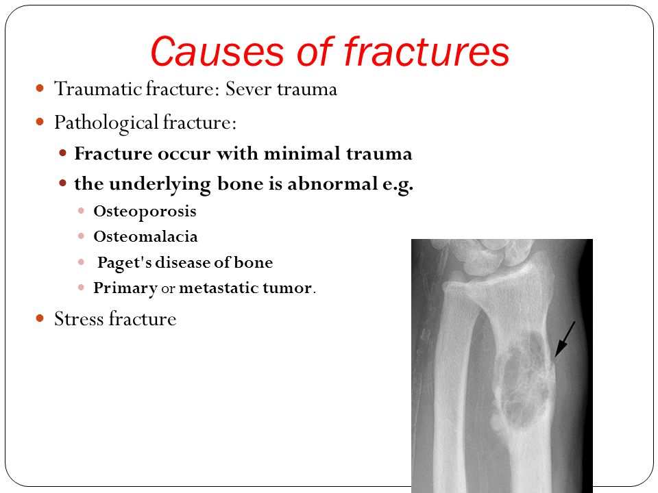 Causes of fractures Traumatic fracture: Sever trauma Pathological fracture: Fracture occur with minimal trauma the underlying bone is abnormal e.g.