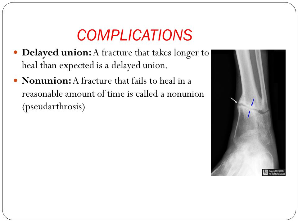 COMPLICATIONS Delayed union: A fracture that takes longer to heal than expected is a delayed union.