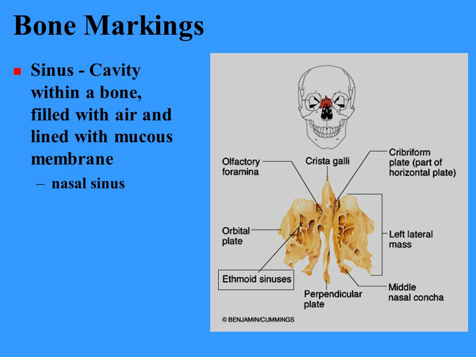 Bone Markings Sinus - Cavity within a bone, filled with air and lined with mucous membrane –nasal sinus