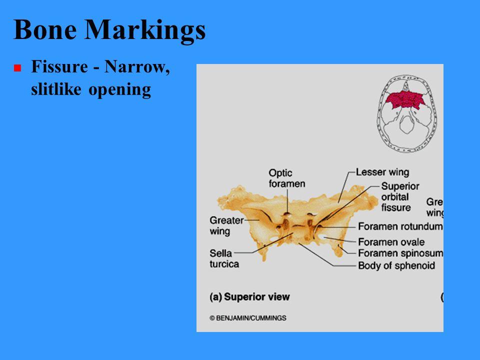 Bone Markings Fissure - Narrow, slitlike opening