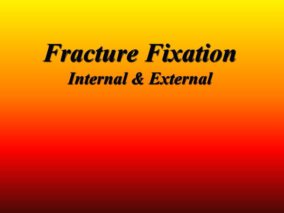 Fracture Fixation Internal & External