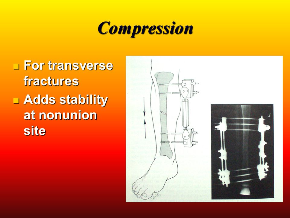 Neutralization For comminuted fracture For comminuted fracture Compression may lead to excessive shortening Compression may lead to excessive shortening Used to maintain: Used to maintain: Length Length Alignment Alignment Stability Stability
