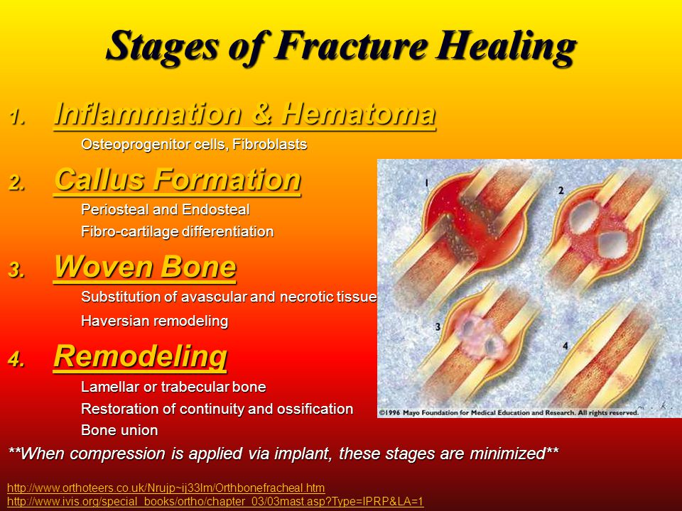 Healing Complications Most often due to severe injury Most often due to severe injury Energy dissipation to bone and soft tissue results in damage to blood supply Energy dissipation to bone and soft tissue results in damage to blood supply Compartment syndrome Compartment syndrome Severe swelling resulting in decreased blood supply can cause the muscles around the fracture to die Severe swelling resulting in decreased blood supply can cause the muscles around the fracture to die Bad osmotic pressure lets blood out instead of across damaged muscle Bad osmotic pressure lets blood out instead of across damaged muscle As pressure remains high, blood cannot get to damaged muscle As pressure remains high, blood cannot get to damaged muscle Neurovascular injury Neurovascular injury Arteries and nerves around the injury site are damaged Arteries and nerves around the injury site are damaged Infection Infection Imbalance of bacteria and body's ability to cope with it when amount of necrotic tissue and contraction of bacteria are not being cleared (by surgeon or patient) Imbalance of bacteria and body's ability to cope with it when amount of necrotic tissue and contraction of bacteria are not being cleared (by surgeon or patient) http://www.hughston.com/hha/a.fracture.htm