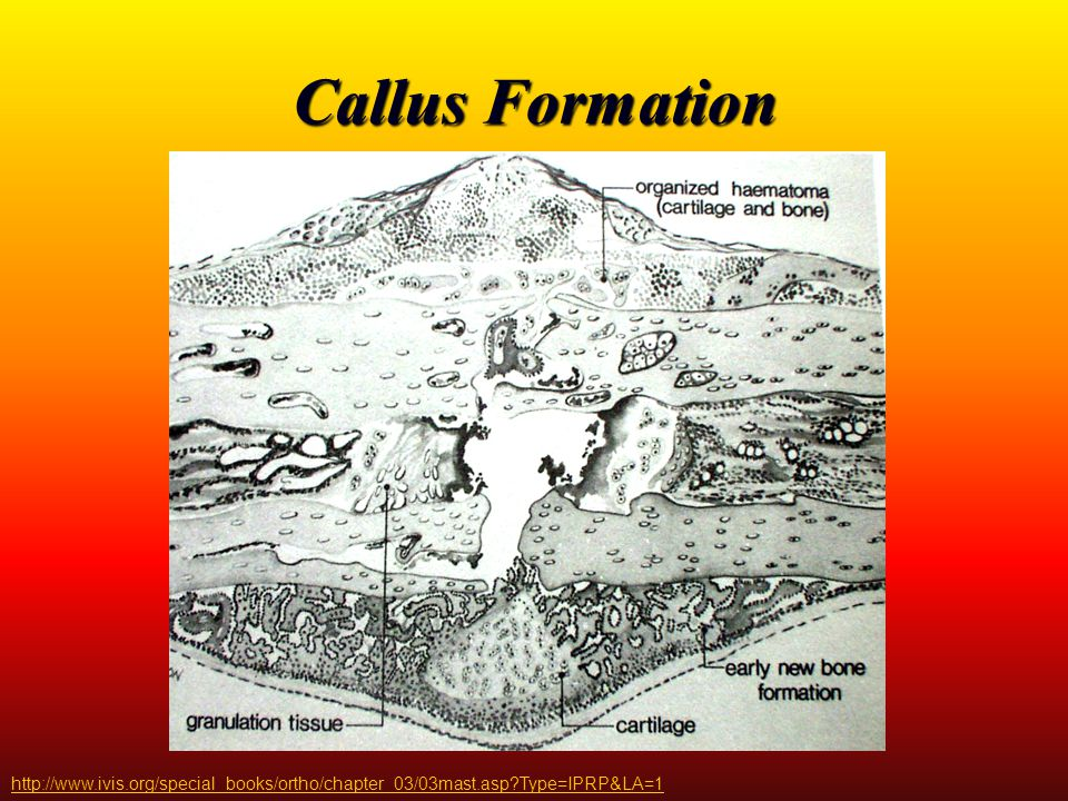 Callus Formation http://www.ivis.org/special_books/ortho/chapter_03/03mast.asp?Type=IPRP&LA=1
