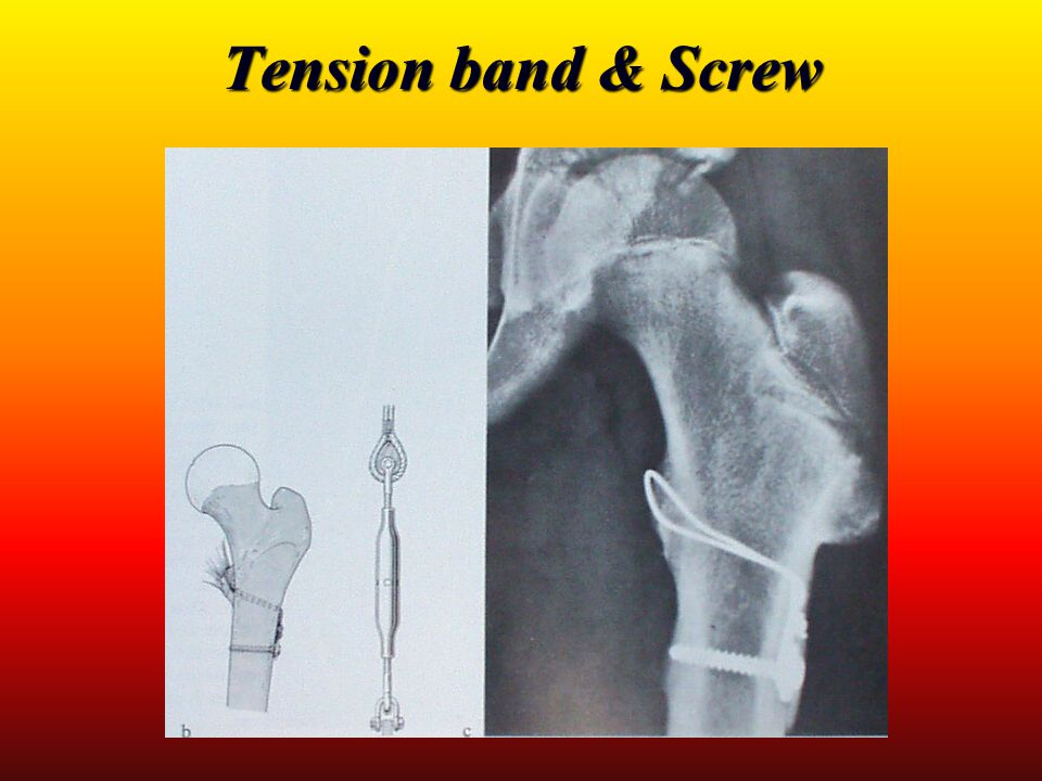 Tension band & Screw