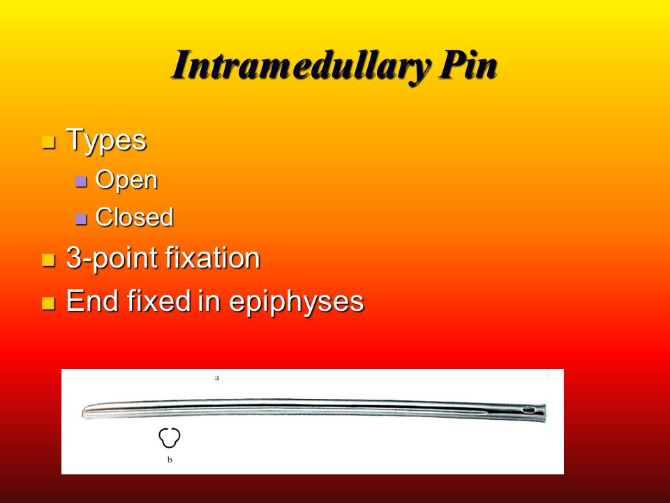 Intramedullary Pin Types Types Open Open Closed Closed 3-point fixation 3-point fixation End fixed in epiphyses End fixed in epiphyses