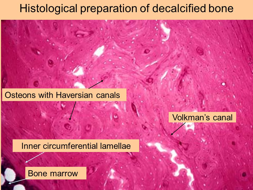 Histological preparation of decalcified bone Osteons with Haversian canals Bone marrow Volkman's canal Inner circumferential lamellae