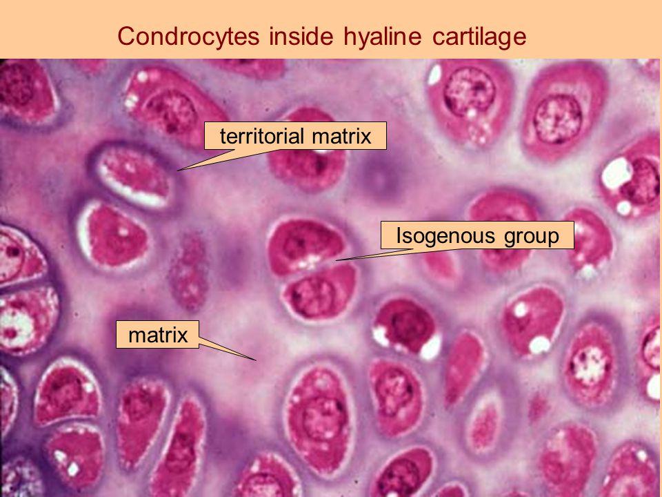 Condrocytes inside hyaline cartilage matrix territorial matrix Isogenous group