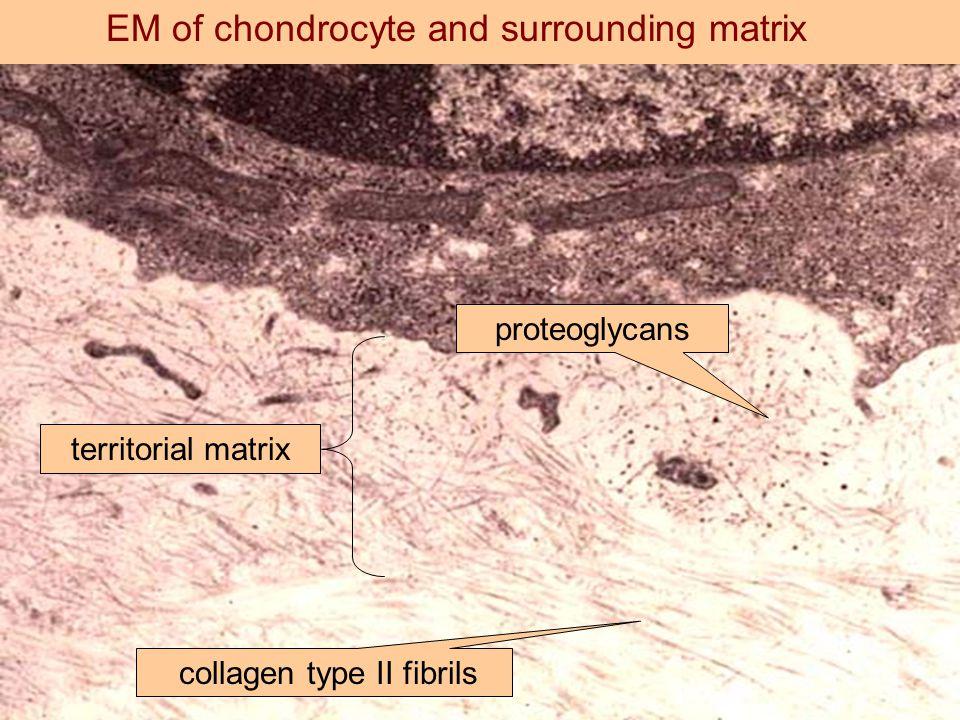 EM of chondrocyte and surrounding matrix territorial matrix proteoglycans collagen type II fibrils
