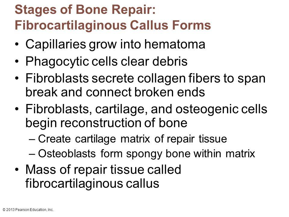 © 2013 Pearson Education, Inc. Stages of Bone Repair: Fibrocartilaginous Callus Forms Capillaries grow into hematoma Phagocytic cells clear debris Fib