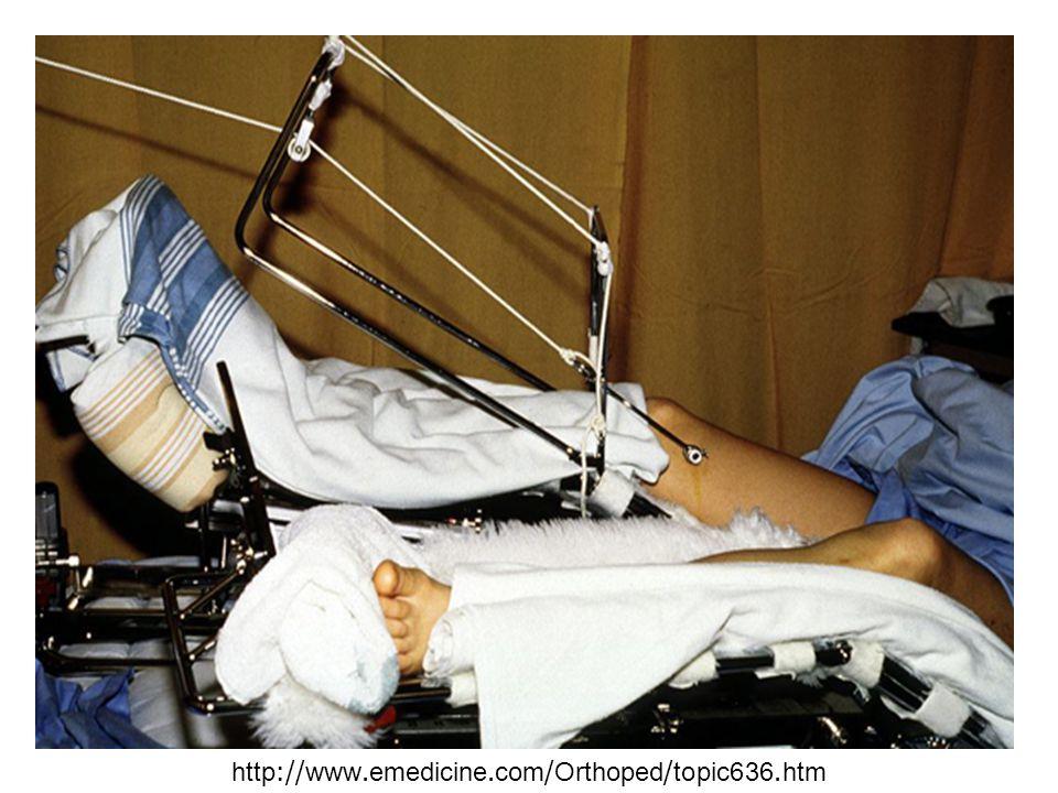 http://www.emedicine.com/Orthoped/topic636.htm
