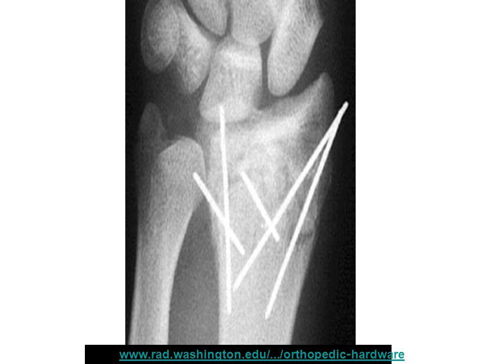 หน้า : www.rad.washington.edu/.../orthopedic-hardwarewww.rad.washington.edu/.../orthopedic-hardware