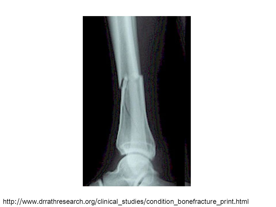 http://www.drrathresearch.org/clinical_studies/condition_bonefracture_print.html