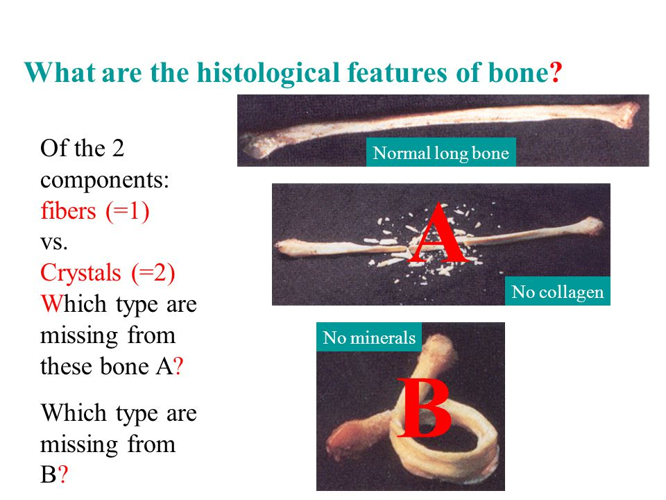 Of the 2 components: fibers (=1) vs. Crystals (=2) Which type are missing from these bone A.