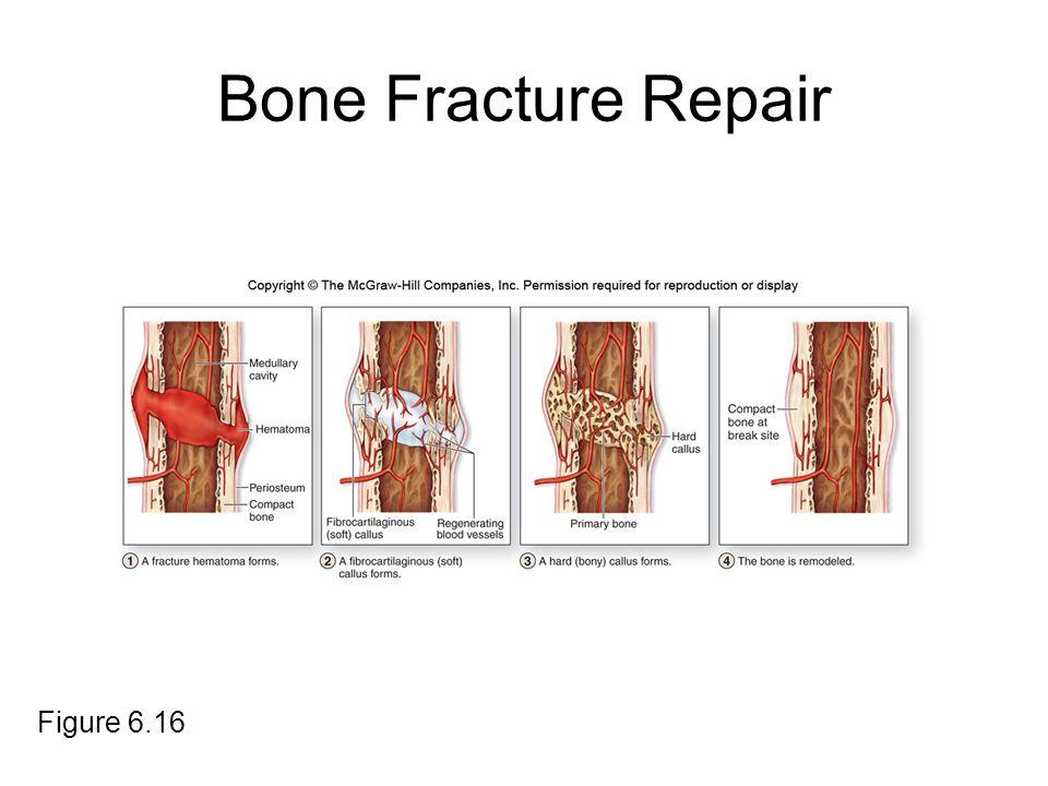 Bone Fracture Repair Figure 6.16