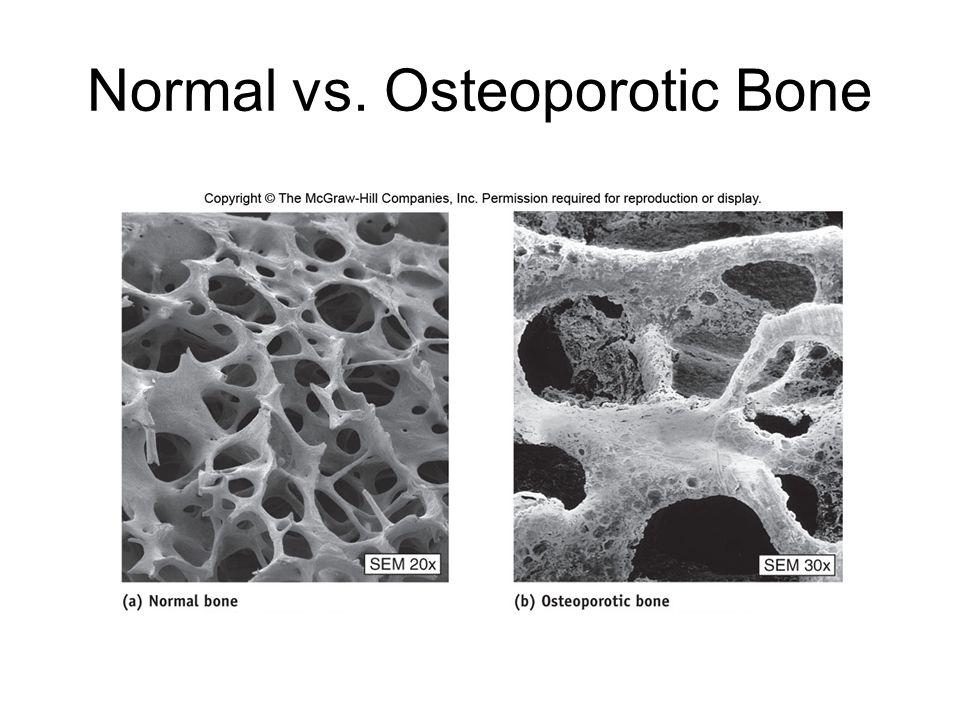 Normal vs. Osteoporotic Bone