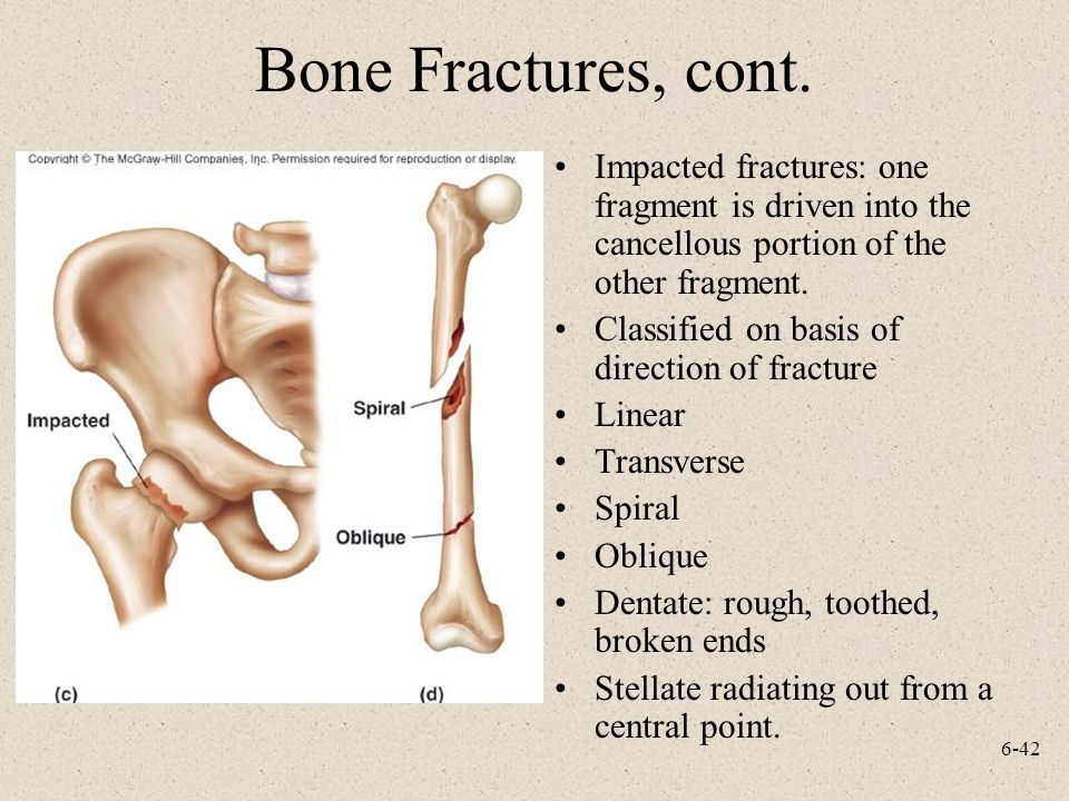 6-42 Bone Fractures, cont. Impacted fractures: one fragment is driven into the cancellous portion of the other fragment. Classified on basis of direct